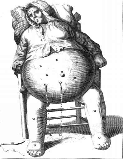 History Of Diuretics Ascending Limb Barnard Health Care