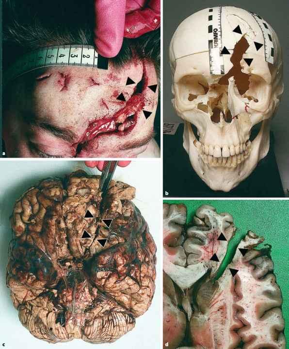 Info - Brain Injury - Barnard Health Care