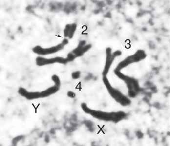 Chromosomes Drosophila