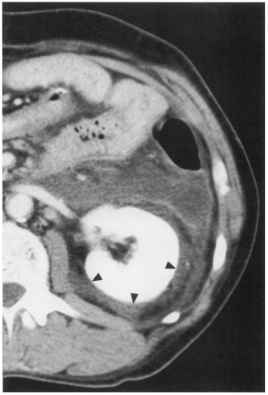 Pseudocyst Rupture Intraperitoneal
