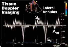 Normal Tissue Doppler Wave Forms
