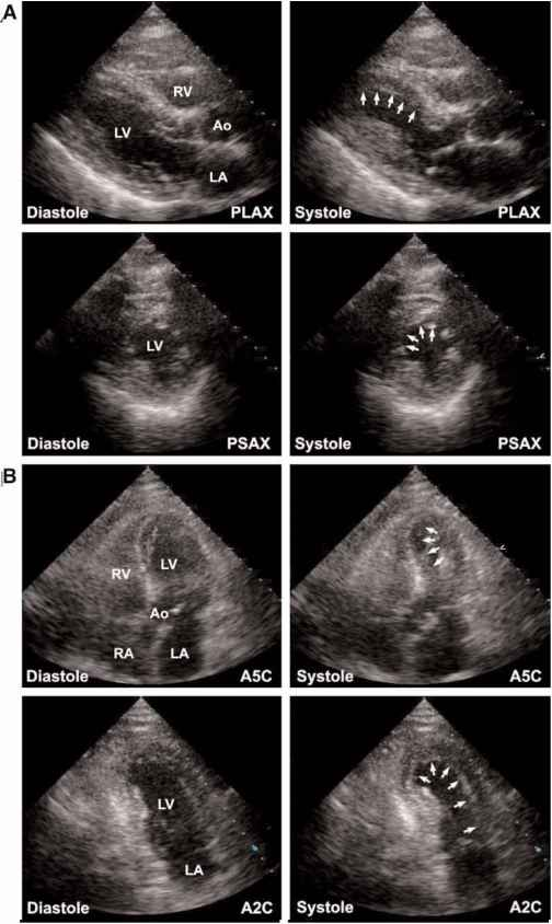 Echocardiography Images