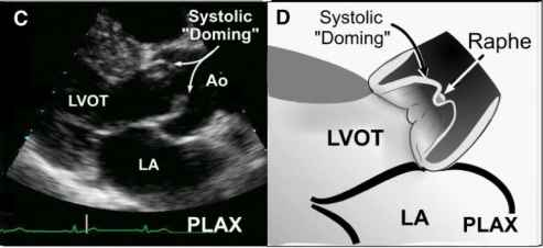 Aortic Stenosis Systolic Doming