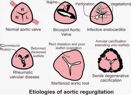 Echocardiography Evaluation of Aortic Regurgitation - Echocardiography