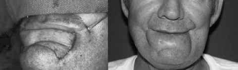 Mustarde Cheek Rotation Flap for Lower Eyelid Repair - Facial Plastic