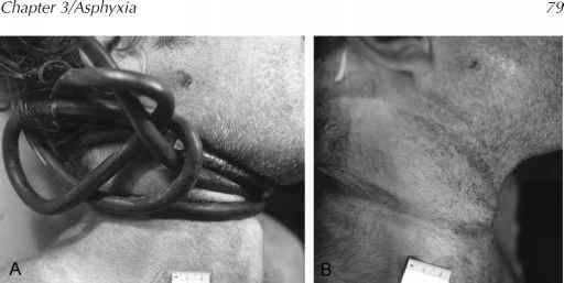 Erotic asphixia pictures