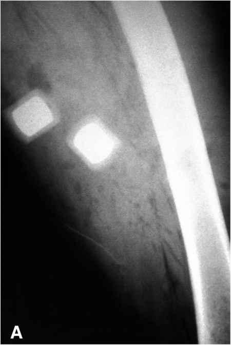 Positioning Forensic Radiology Barnard Health Care