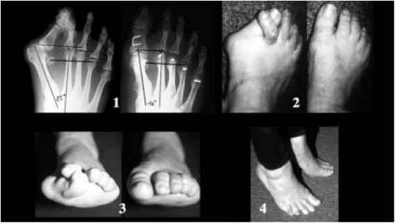 Xray Overlapping Toes