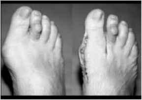 Hammer or claw toe - Hallux Valgus - Barnard Health Care