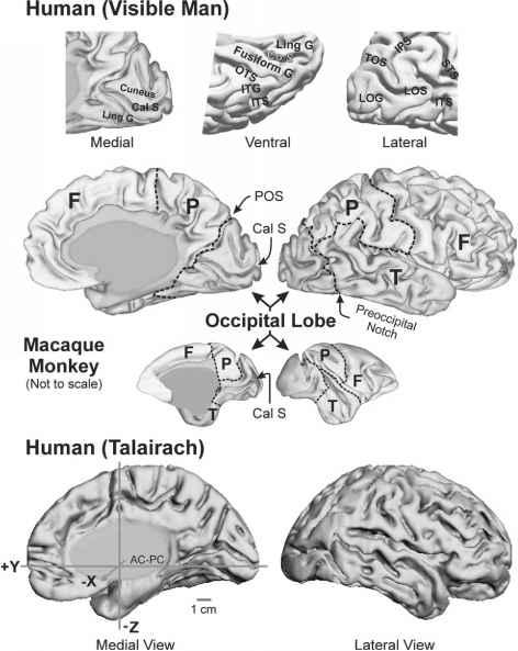 Descriptive Anatomy - Human Brain - Barnard Health Care