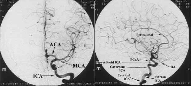 Normal Anatomy Of The Cerebral Arterial Vasculature Human Brain