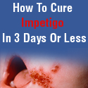 Fast Impetigo Cure: Incredible Product W/ Amazing Conversions