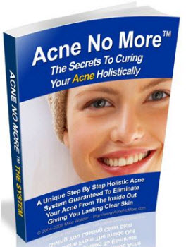 Instant Cure for Acne