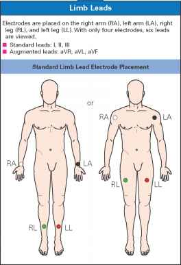 Lead Ecg Placement