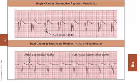 Pacemaker Spikes