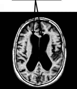 Enlarged Brain Ventricles Dementia