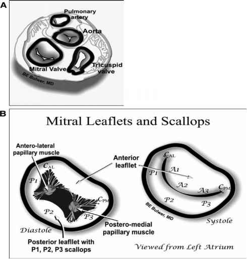 Mitral Valve Leaflet Bowing