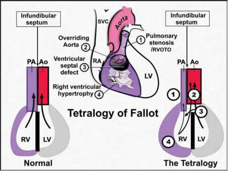 Echo Images Tetralogy Fallot