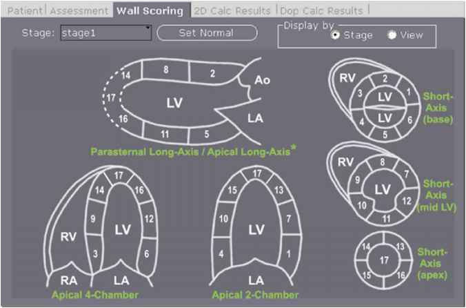 Long Axis Echocardiography