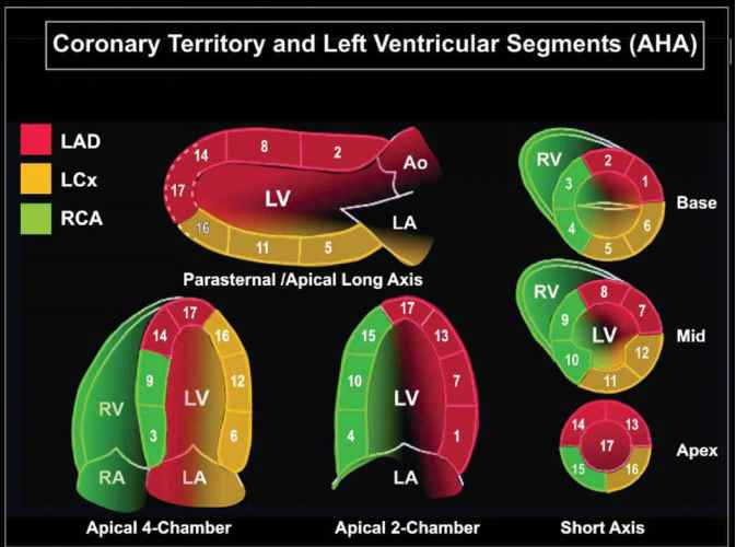 Aortic Valve Echocardiography Anatomy
