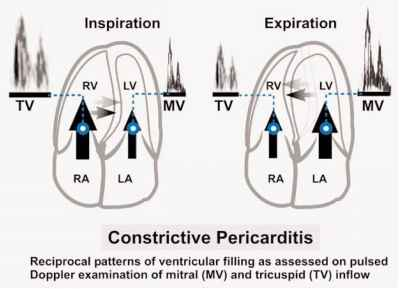 Echo Video Constrictive Pericarditis