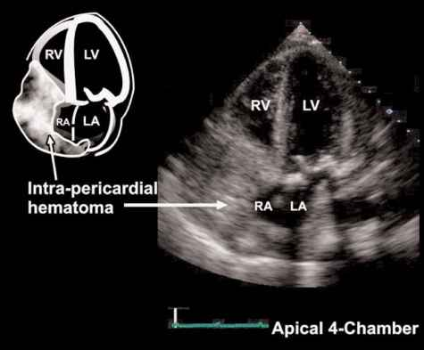 Echocardiography Subcostal Ivc View