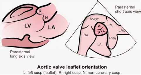 Aortic Valve Leaflets Echocardiography