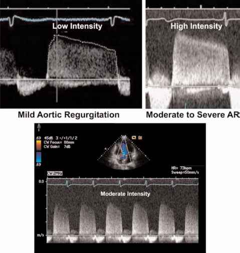 Aortic Regurgitation Doppler Wave