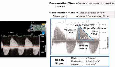 Aortic Regurgitation Wave