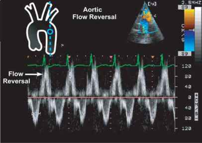 Diastolic Flow Reversal Aortic