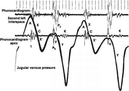 Constrictive Pericarditis Pressure Waves