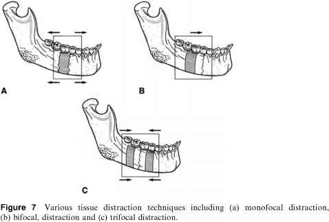 Distraction Osteogenesis Mandible