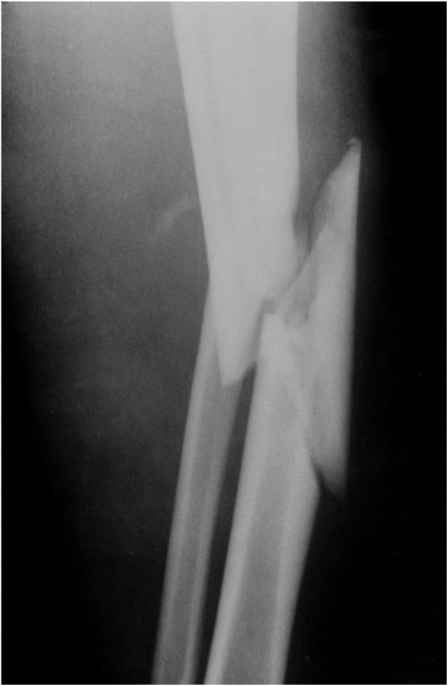 Complete Lisfranc Disruption Divergent
