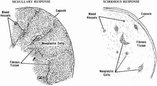 r - neoplastic cells