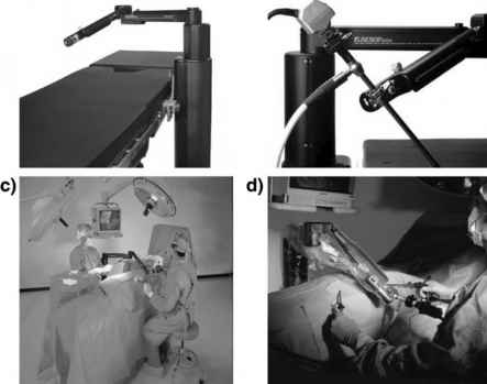 Aesop Robotic Surgical System