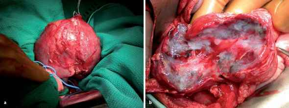 Wilms Tumor And Child With Nephrectomy